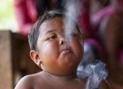 Günde 2 Paket Sigara İçen Çocuğun Son Haline Bakın - 1