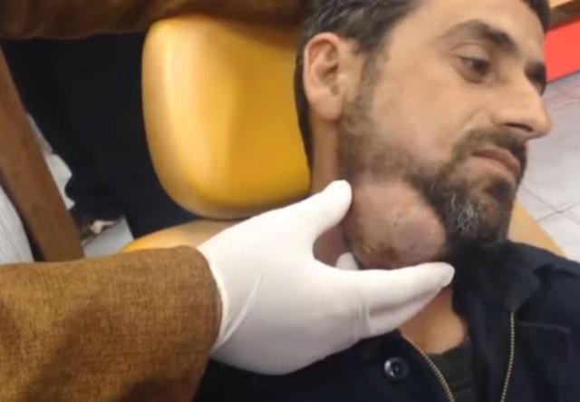 Suriyeli Adamın Boynundan Öyle Bir Şey Çıktı ki... Şoke Olacaksınız! - 1