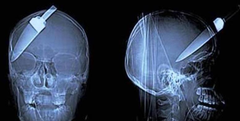 En İlginç Röntgenler Görenlere Yok Artık Dedirtti - 1