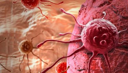 Sağlık Alanında Dev İcat! Kanserli Hücreyi 10 Saniyede Tespit Ediyor