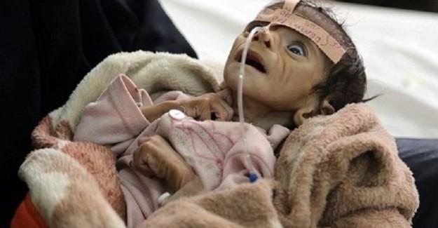5 aylık bebek açlıktan öldü