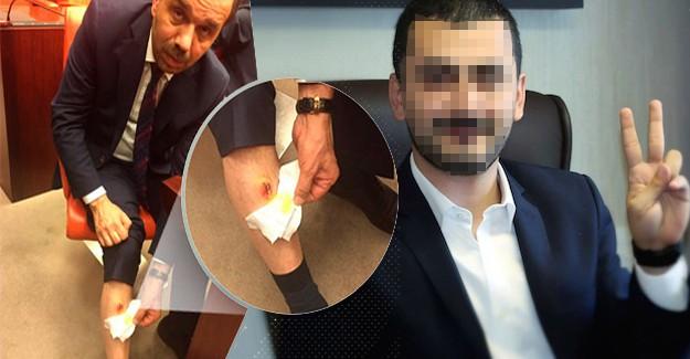 CHP'li İsmin Bacağını Isırdığı AK Partili Vekil: Aşı Yaptırdım