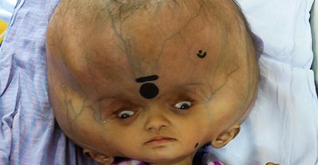 Dünyanın En Büyük Kafasına Sahip Bebek