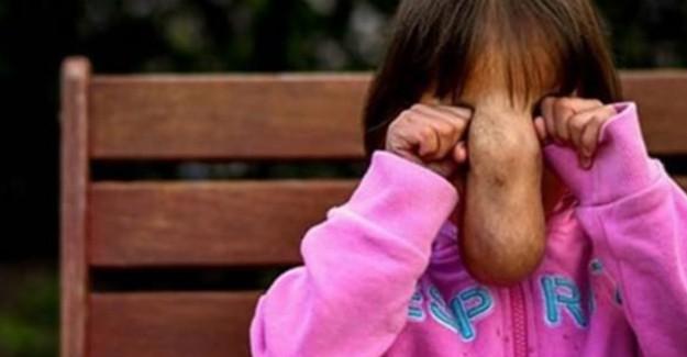 Yüzünde Et Parçasıyla Doğan Kızı Ailesi Bile Tanıyamadı!