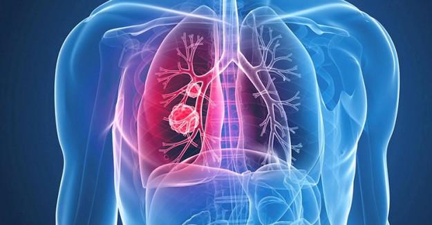 Akciğerlerin Temizlenmesine Yardımcı Olan Yararlı Bitkiler!