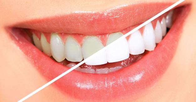 Dişlerinizi Beyazlatırken Dikkat Edilmesi Gerekenler!