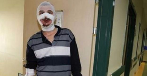 Erzincan'da Skandal Olay! Isınmak İçin Sobaya Benzin Dökünce...