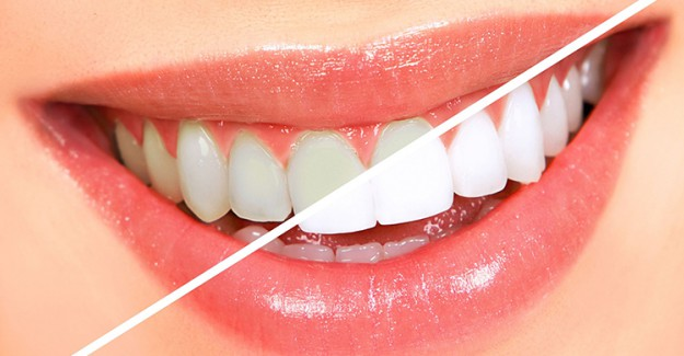 Sararmış Dişlere Bitkisel Çözüm!