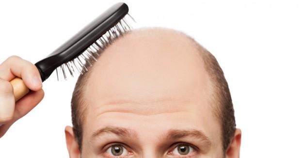 Ünlü Erkeklerin Saçları Dökülmeden Önceki Hallerini Görenler Şoke Oldu!
