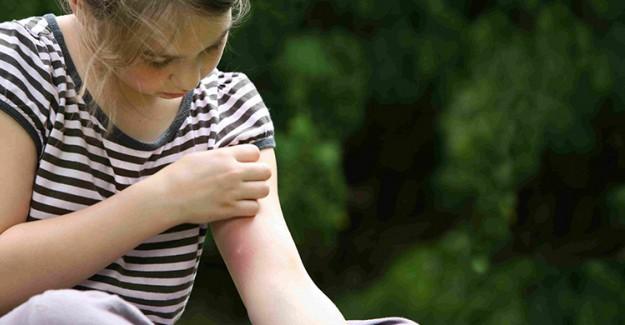 Yaz Aylarında Böcek Isırmasını Önlemenin Doğal Yolları!