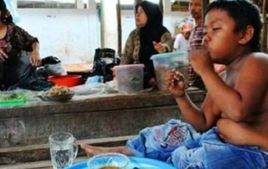 Küçük Yaşta Sigaraya Başlayan Çocuk 6 Yılda Bakın Ne Hale Geldi!