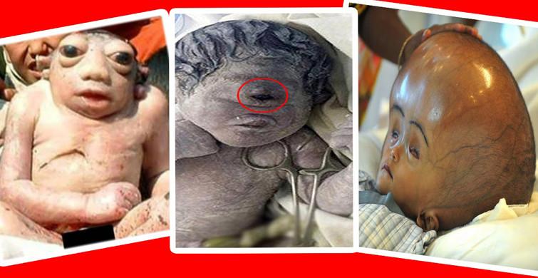3 Günlük Bebek Erken Yaşlanma Hastalığına Yakalandı