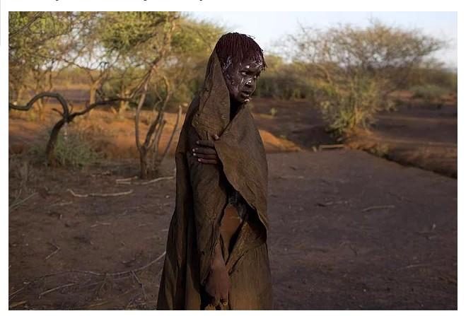 Afrikalı Kadınların Maruz Kaldığı İç Ürpertici Gelenek; Kadın Sünneti - 1