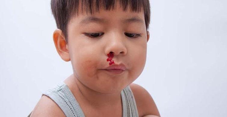 Çocuklarda Vitamin Eksikliğini Gösteren Belirtiler! - 1