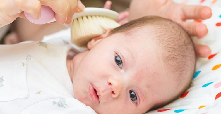 Bebeklerde Konak Belirtisi Nelerdir? - 1