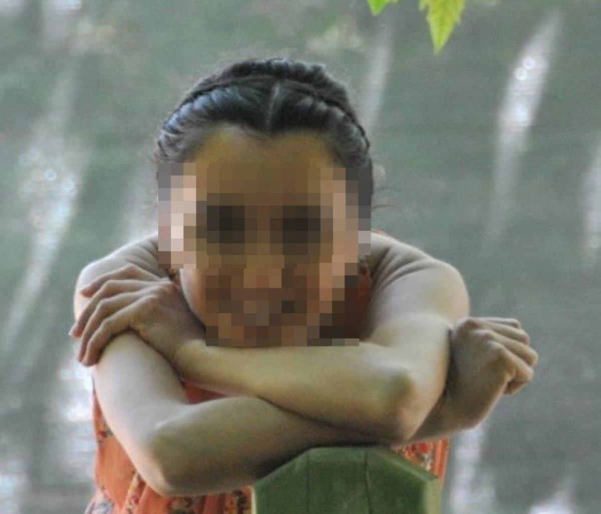 Bursa'da Tecavüz Girişiminde Bulunan Adamı Pitbull Yakaladı6456456