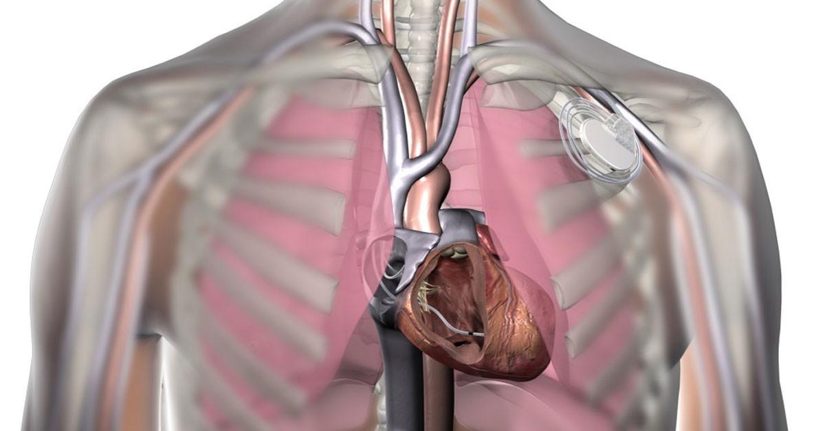 kalp pili nasıl takılır