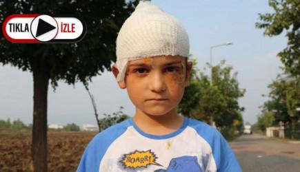 8 Yaşındaki Çocuk Kangal Saldırısına Uğradı! Ölmekten Son Anda Kurtuldu