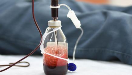 Ozon Terapisi İle Bağışıklık Sistemini Güçlendirebilirsiniz