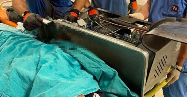 Asker Elini Kıyma Makinesine Kaptırdı, İtfaiye Kurtardı