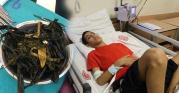 14 Yaşındaki Çocuğun Midesinden 2 Kilo Yabancı Madde Çıkarıldı