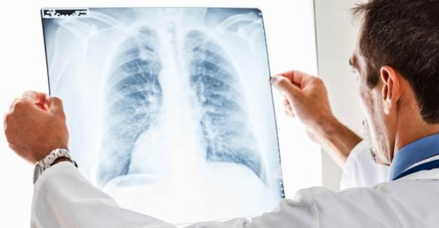 Akciğerde Neden Leke Olur?