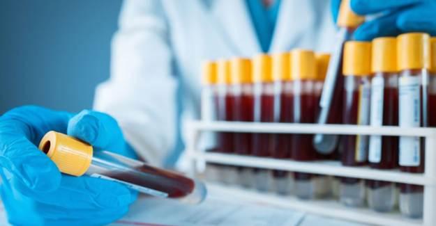 Basit Bir Test İle Cocid-19'un Kimler İçin Ölümcül Olduğu Anlaşılıyor