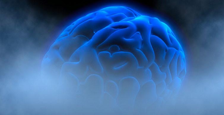 Beyin Sisi Nedir?