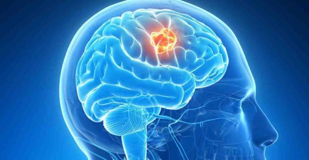 Beyin Tümörü Nedir? Belirtileri Nelerdir?