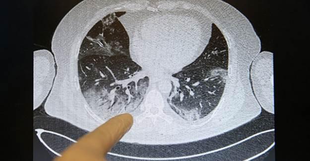 Bilim Kurulu Üyesi: 'Bu Hastalar Nasıl Nefes Alıyor?'