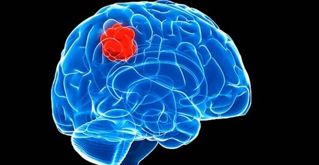 Bu Belirtiler Beyin Tümörünün Habercisi