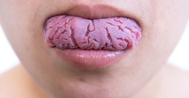 Dildeki Çatlaklar Neden Oluşur?
