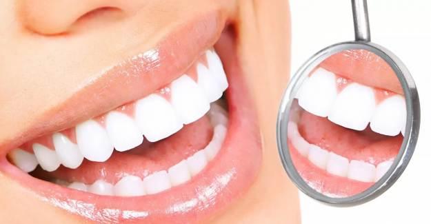 Diş Apsesi Nasıl Geçer?