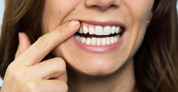 Diş Eti Hastalığı Kanser Belirtisi