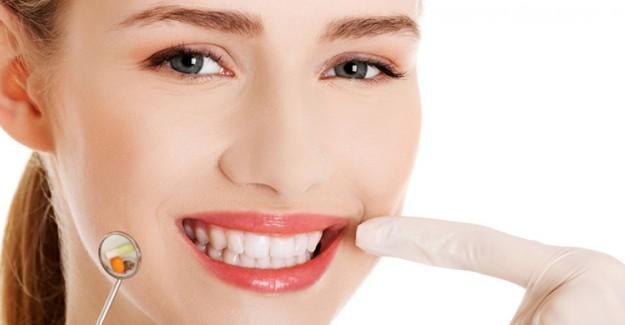 Diş Nasıl Beyazlatılır? Evde Uygulayacağınız Etkili Tarifler