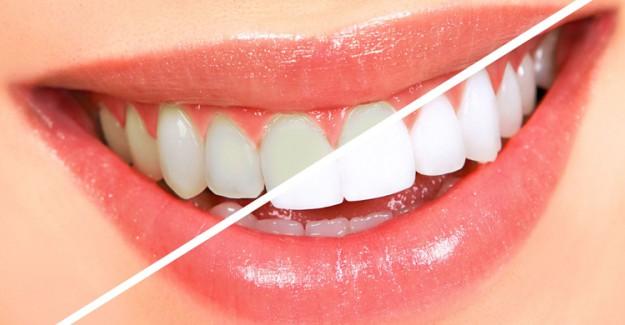 Diş Sağlığına İyi Gelen Yiyecekler