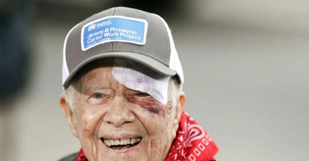 Eski ABD Başkanı Carter Hastaneye Kaldırıldı