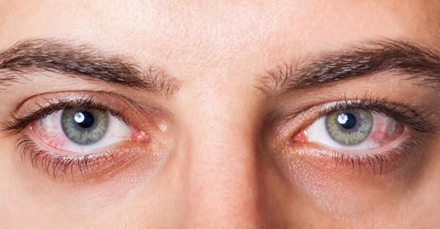 Göz Kanlanması Neden Olur? Göz Kanlanmasına Ne İyi Gelir?