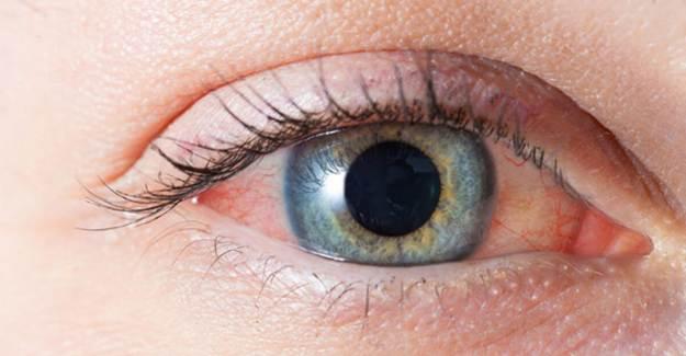 Göz Kızarıklığı ve Kaşıntı Koronavirüs Belirtisi midir?