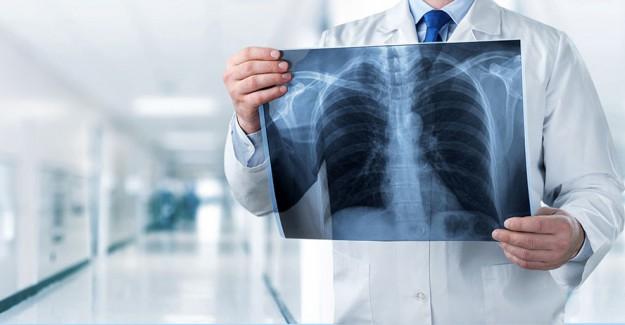 Hasta Yanında Röntgen Filmi Taşımayacak
