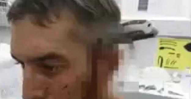 Kafasına 15 Santim Bıçak Saplandı, Sorduğu Soru Şaşırdı