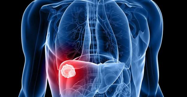 Karaciğer Kanserinden Korunmak İçin Ne Yapılabilir?